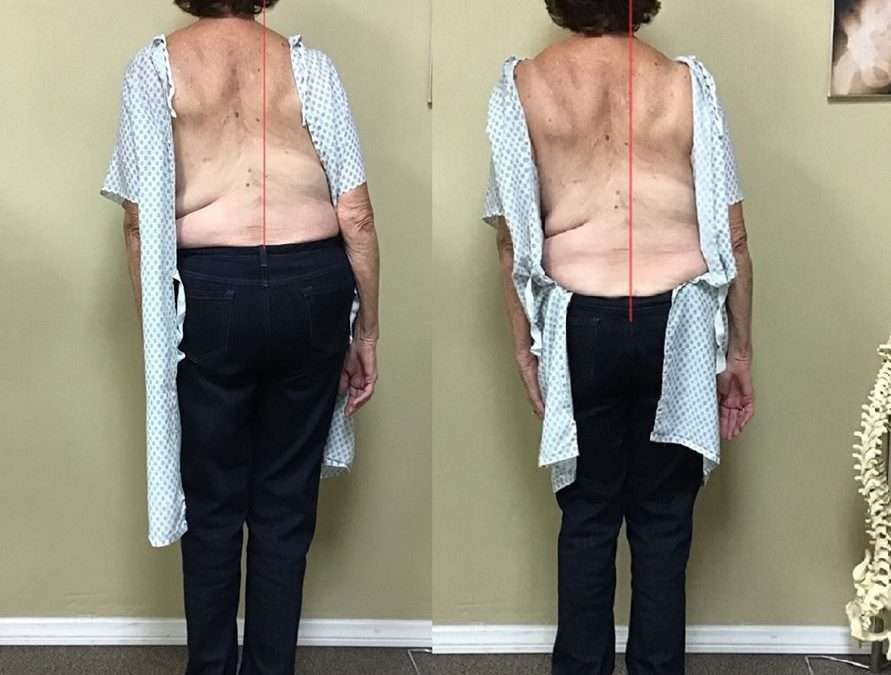 Gonstead Chiropractic XRay Comparison Case Study for a 79 yr. old woman
