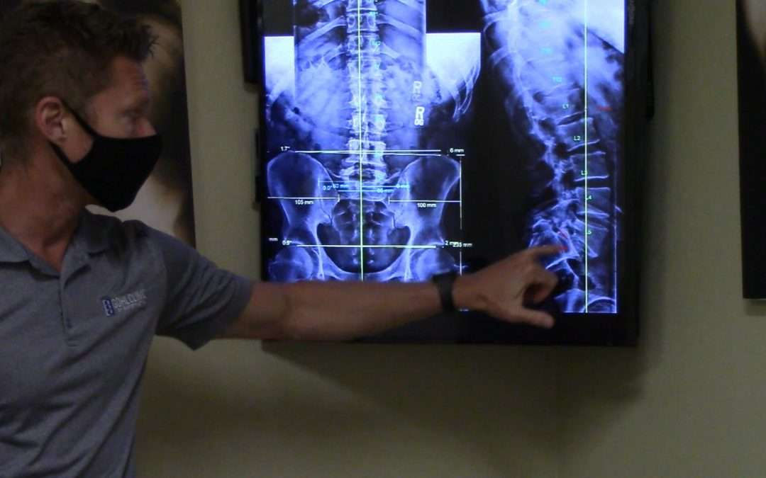 Severe spondylolisthesis (spondy) case gets tremendous relief with Gonstead Chiropractic San Diego