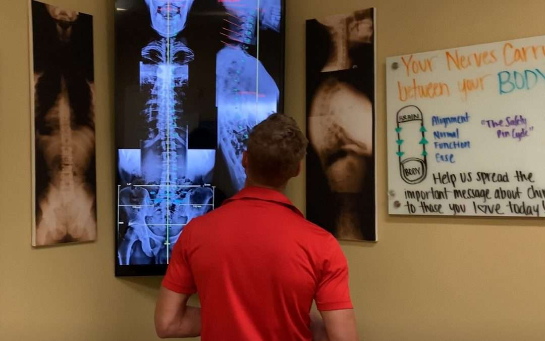 Demonstration of Gonstead Chiropractic Lumbar and Cervical Adjustment